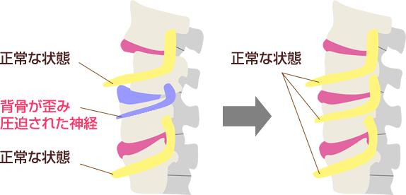 正常な状態と背骨が歪み圧迫された神経イラスト