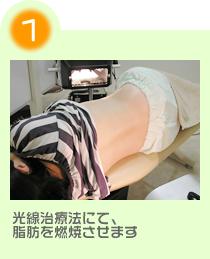 光線治療法にて脂肪を燃焼させます